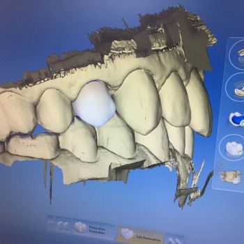 3D scanner en kroon: CEREC